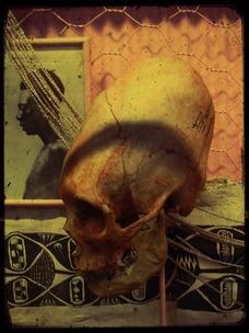 Crânes allongés dans le monde.