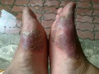 Obat Paling Ampuh atasi gatal eksim kulit memerah terkelupas