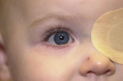 cataractes-congenitales-500x328