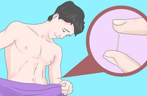 Obat herbal kencing sakit dan disertai nanah kental
