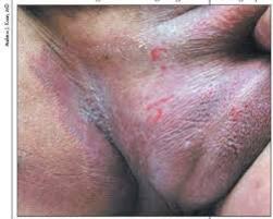 Obat gatal eksim ampuh di bagian anunya yang sangat gatal