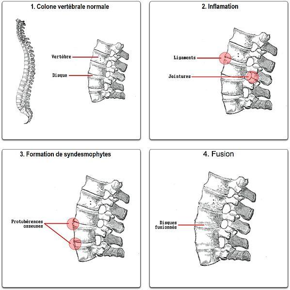 Évolution de la Spondylarthrite ankylosante