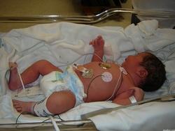 7 faits sur le don d'organes
