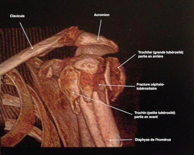 Reconstruction au scanner 3D d'une fracture              céphalo-tubérositaire de l'humérus