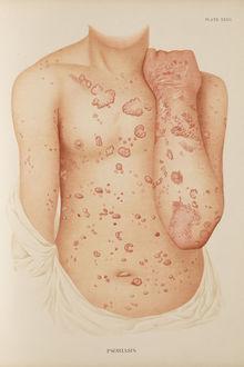 Planche clinique datant du XIXe siècle représentant un individu atteint de psoriasis