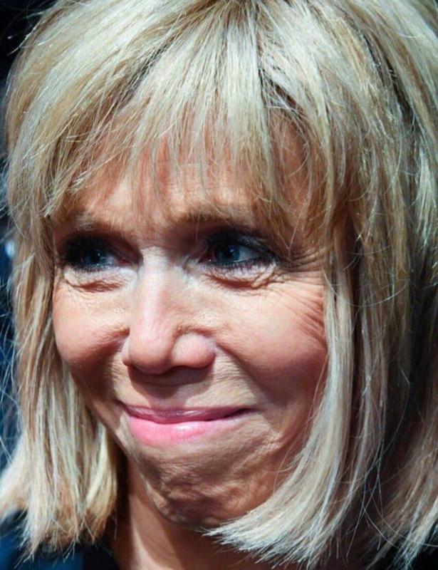 Brigitte Macron, son hospitalisation en plein cœur de l'été