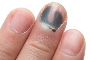 Un hématome sous l'ongle ne conduira pas forcément à la perte de l'ongle
