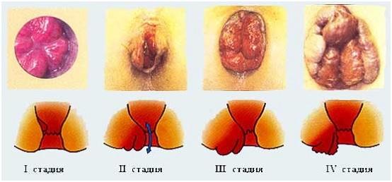 Симптомы 2 стадии геморроя