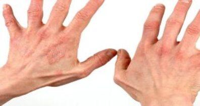 4 Jenis Obat Gatal Alergi yang Paling Umum 4 Jenis Obat Gatal Alergi yang Paling Umum 4 Jenis Obat Gatal Alergi yang Paling Umum • Hello Sehat 5 Obat Gatal Alergi Kulit Terbaik Paling Ampuh dan Manjur JENIS OBAT GATEL GATEL KULIT DI APOTIK PALING AMPUH nama obat salep gatal pada kulit terbukti paling mujarab