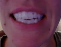 *Test; whitestrips blanchiment des dents de crest 3D white