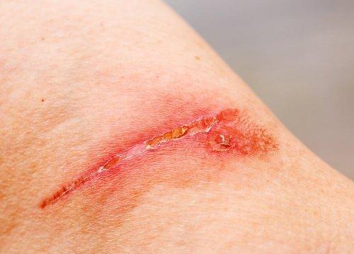 cicatrisation lente et le diabète
