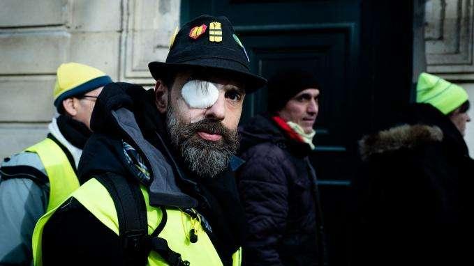 """""""Gilets jaunes"""" : Jérôme Rodrigues, qui affirme avoir été blessé par un tir de LBD, annonce avoir perdu l'usage de son œil"""
