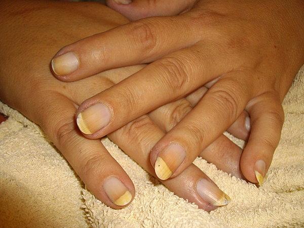 nail-divers-aout-2010-109.JPG