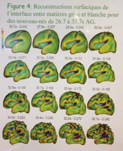 Voir le cerveau se construire