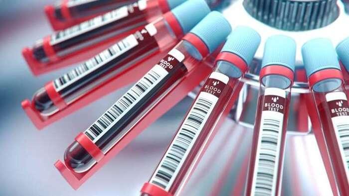La Chine enquête sur une possible contamination de produits sanguins au HIV