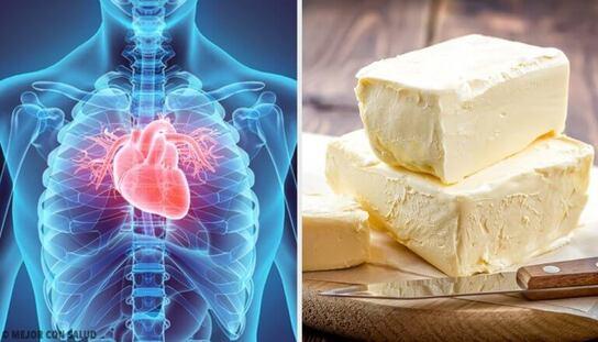 5 aliments qui affectent gravement notre cœur