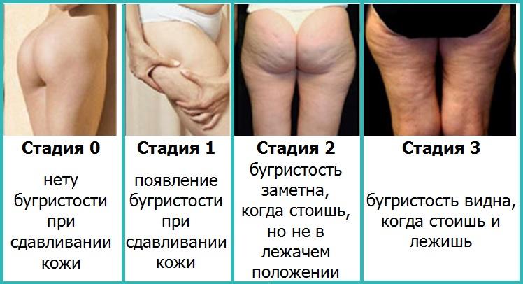 Как убрать на заднице целлюлит