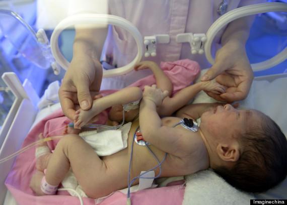 Bébé né avec 4 pieds, 4 mains En Chine