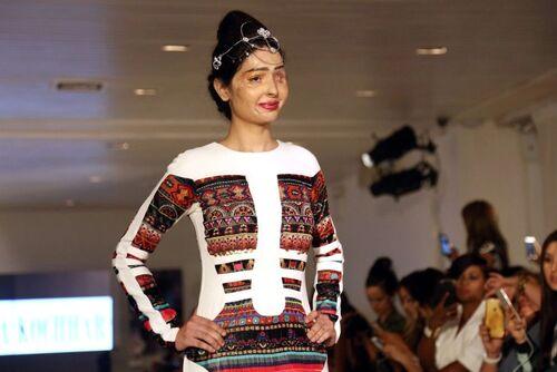 Défigurée à l'acide, elle défile à la Fashion Week de New York