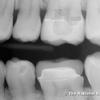 Mystérieux implant dentaire