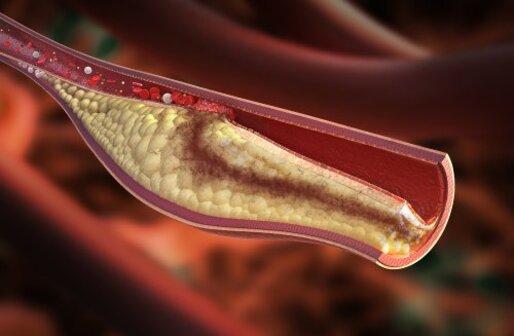 les causes de l'artériosclérose