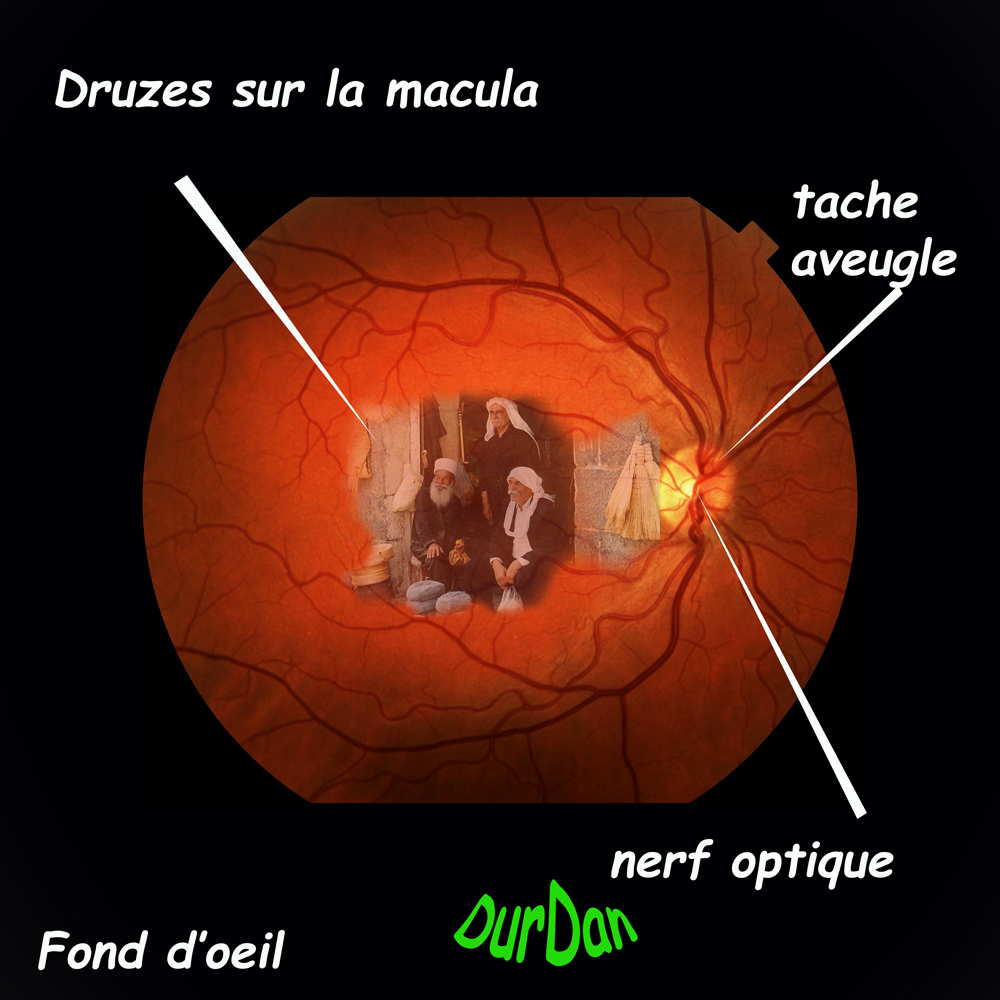 ophtalmologie/DMLA/Macula