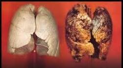 Beberapa Obat Penyakit Paru Paru Yang Di Jual Di Apotik