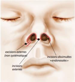 La Chirurgie du nez : la Rhinoplastie