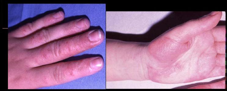 96aa7f408deb L eczéma dyshidrosique ou dyshidrose c est quoi   - Beauté des peaux ...