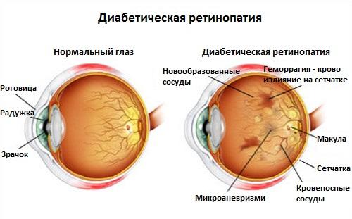 Болезнь глаз при диабете