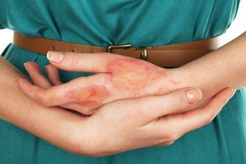 A-cause-d'une-infection-500x334