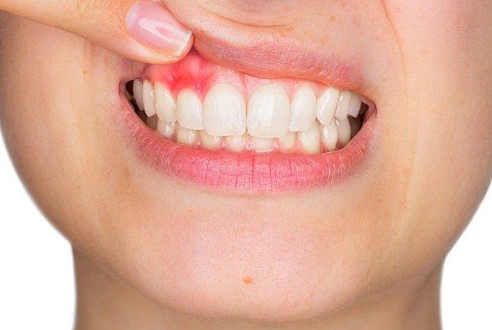 Где удалять зубы с осложнениями сахарного диабета