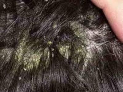 Obat ampuh mengobati kulit kepala gatal bersisik dan mengelupas