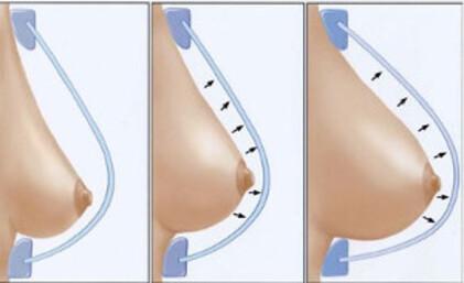 Comment faire grossir ses seins