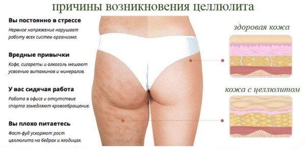 Дарсонваль для тела от целлюлита отзывы