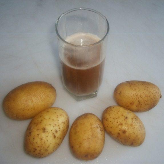 Сок картофеля от геморроя отзывы