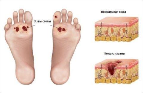 Очистка сосудов ног при диабете
