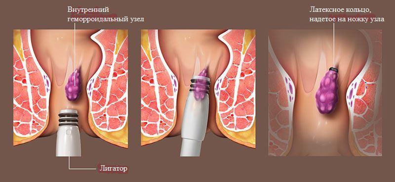 Геморрой лечение латексным кольцом после