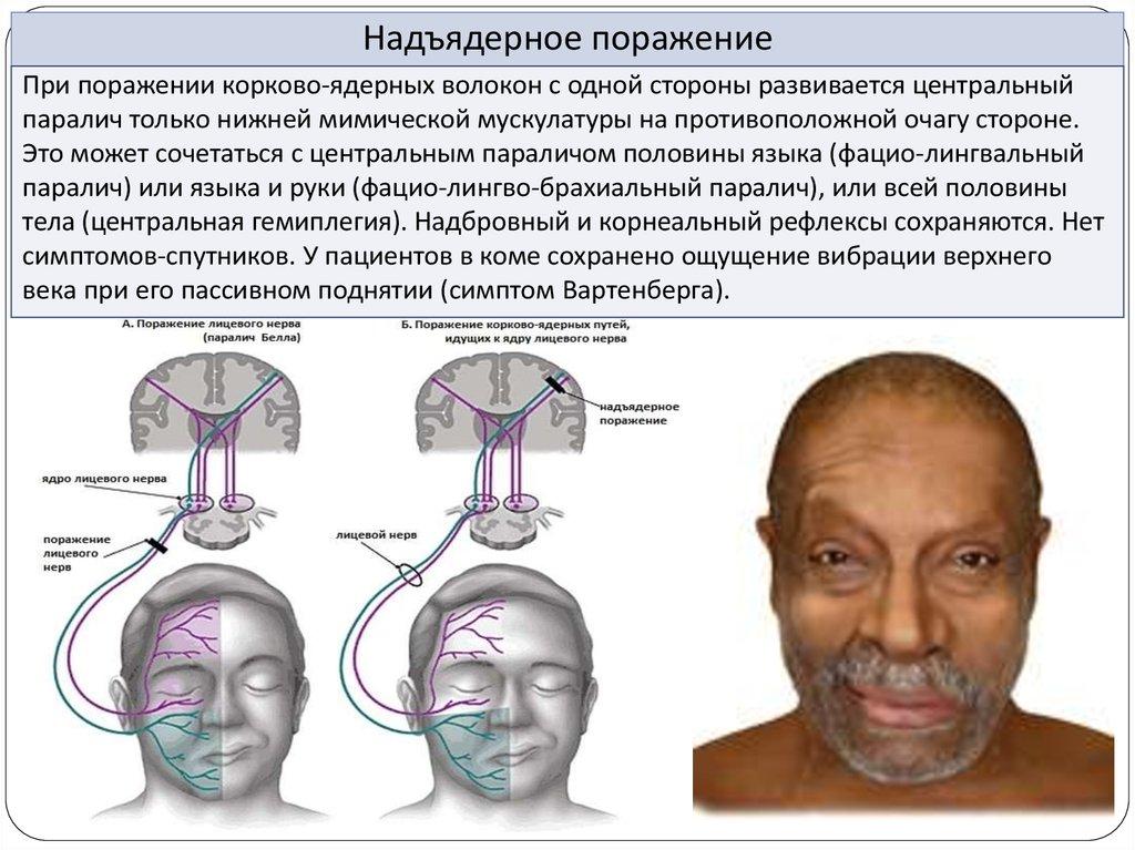 Поражение лицевого нерва при сахарном диабете