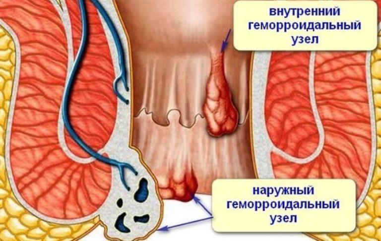 Внутренний геморрой лечение при кровотечениях народными средствами