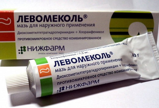Лечение отека после операции геморроя