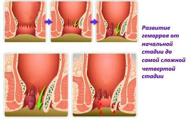 Геморрой лечение подскажите