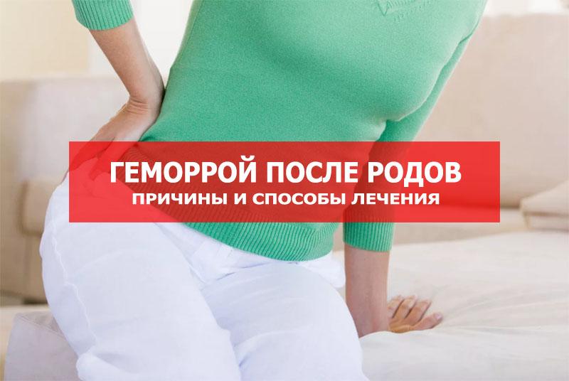 Лечение геморроя в домашних условиях при грудном вскармливании