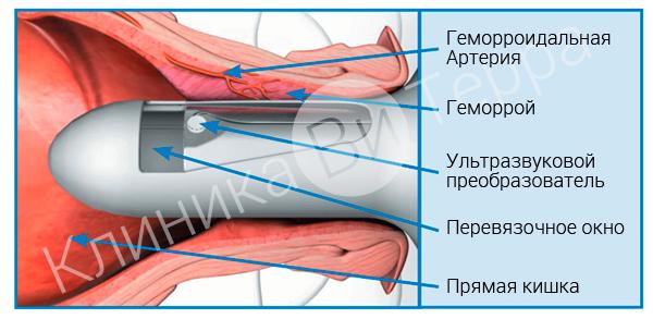 Лечение геморроя по методу hal