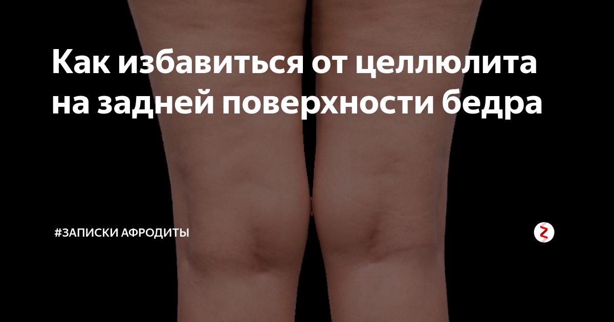 Как избавиться от целлюлита на задней части ног