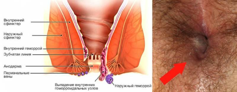 Геморрой опасность и лечение