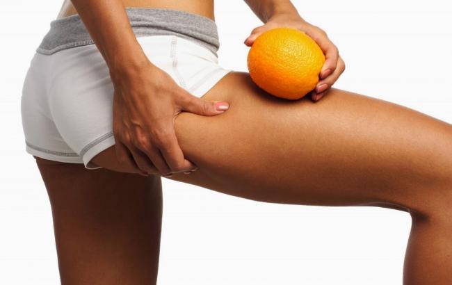 Как избавиться от видимого целлюлита на ногах