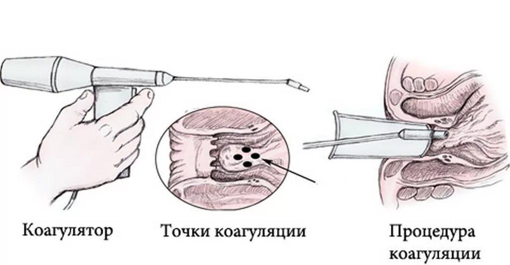 Геморрой лечение творог