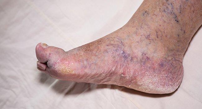Отёкшие ноги при диабете