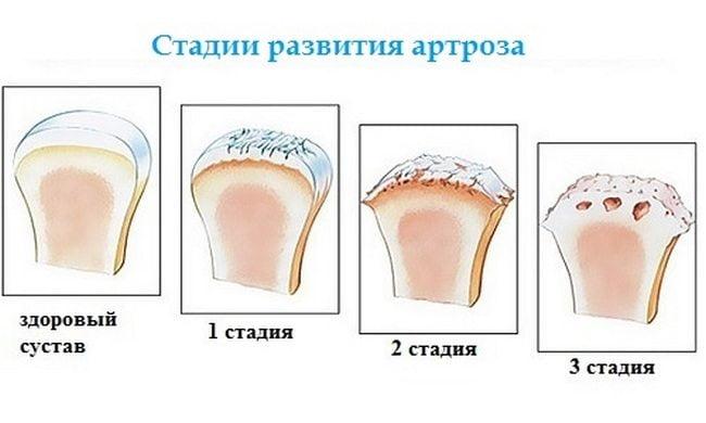 Как лечить анальнальной трещины
